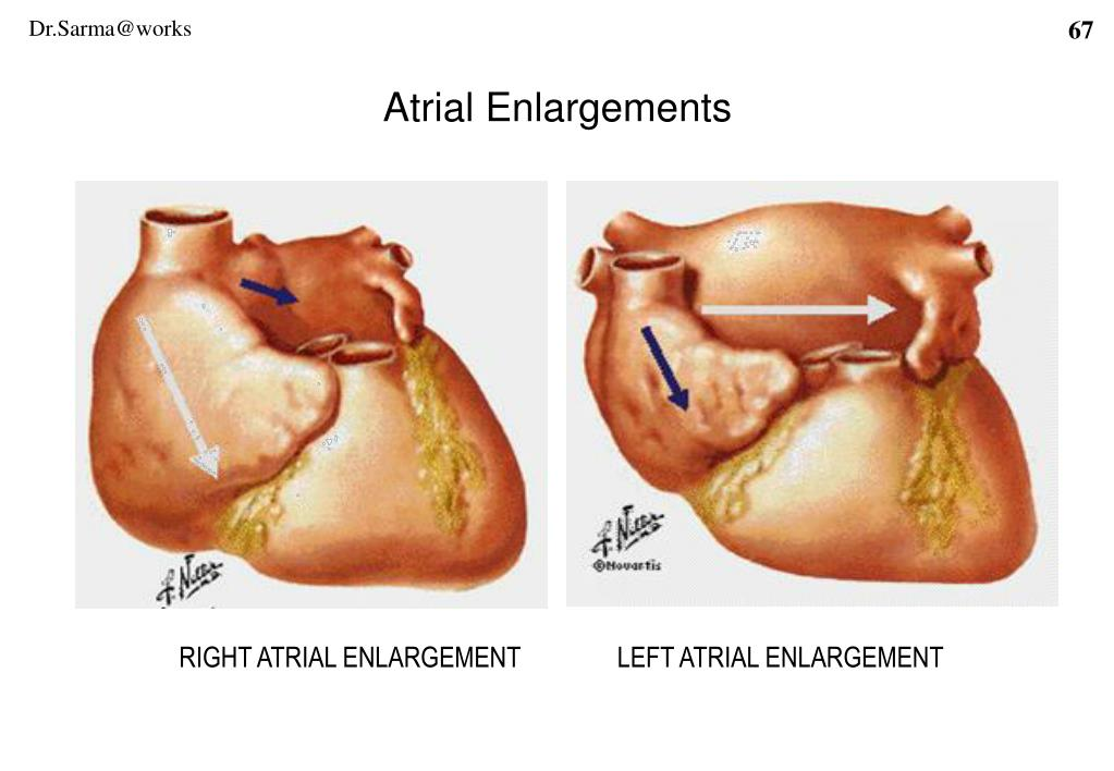 Atrial Enlargements