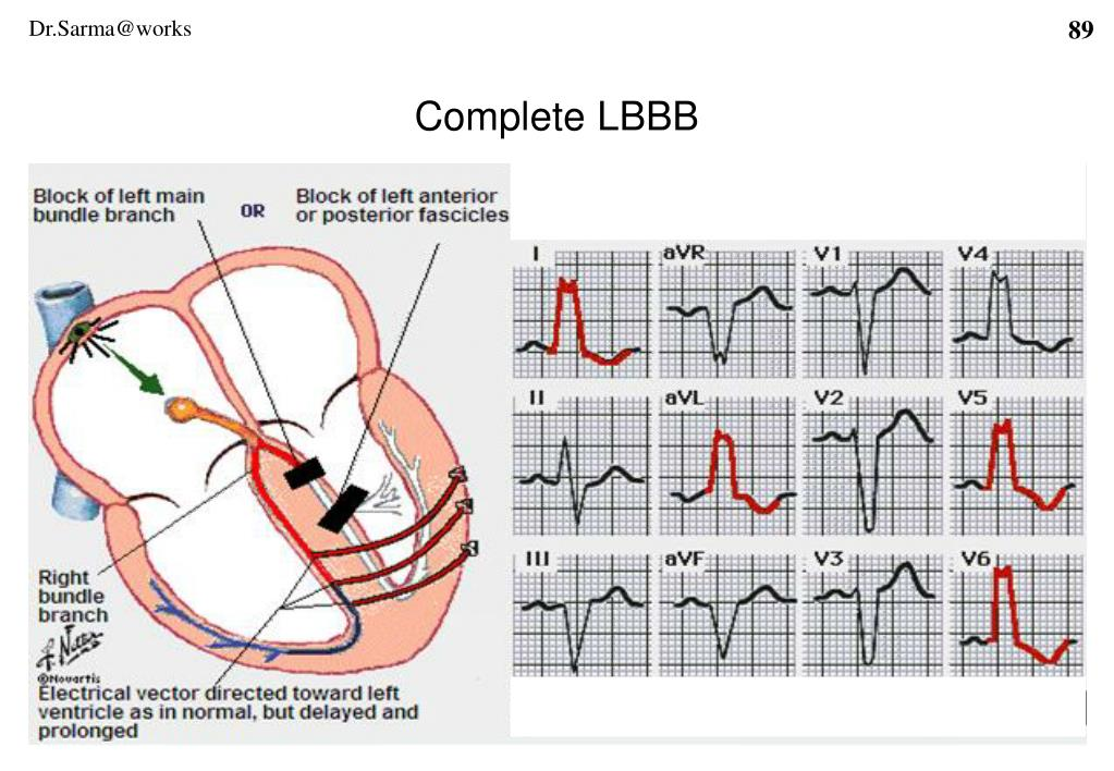 Complete LBBB