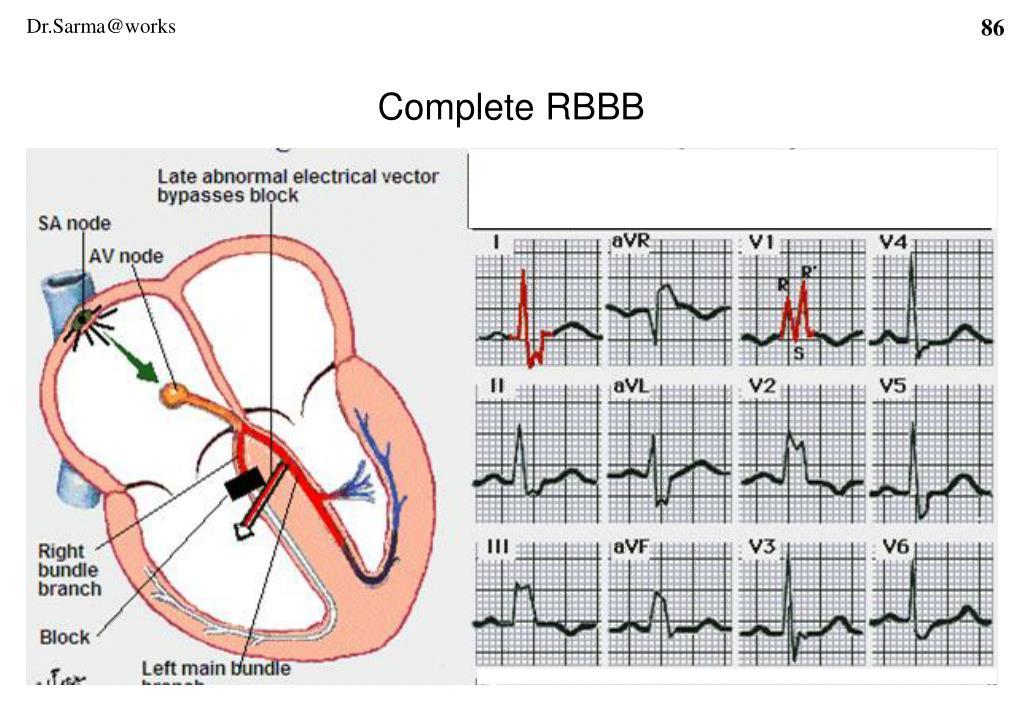 Complete RBBB