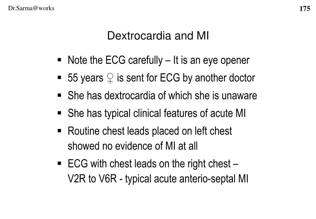 Dextrocardia and MI