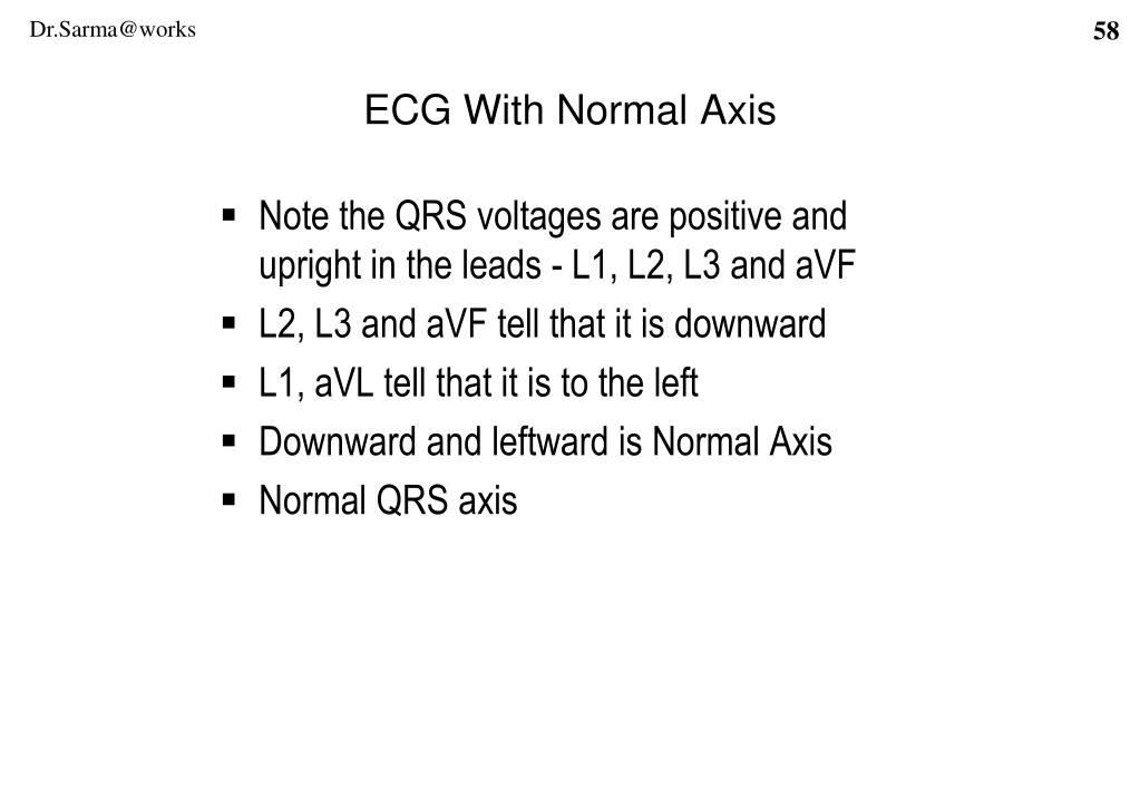ECG With Normal Axis