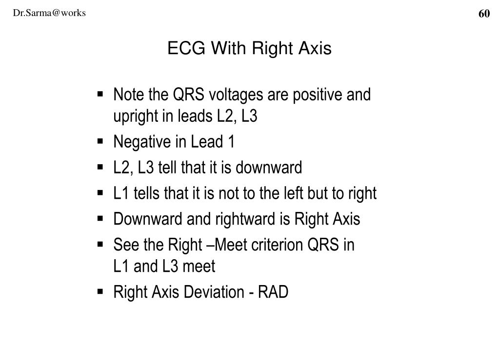 ECG With Right Axis