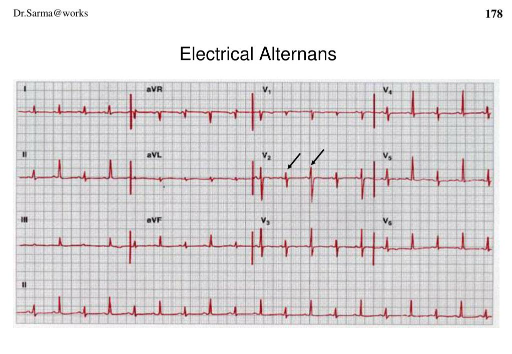 Electrical Alternans
