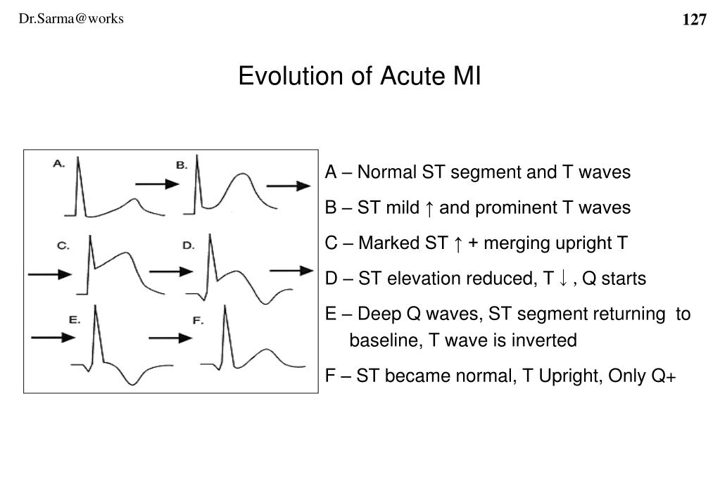 A – Normal ST segment and T waves
