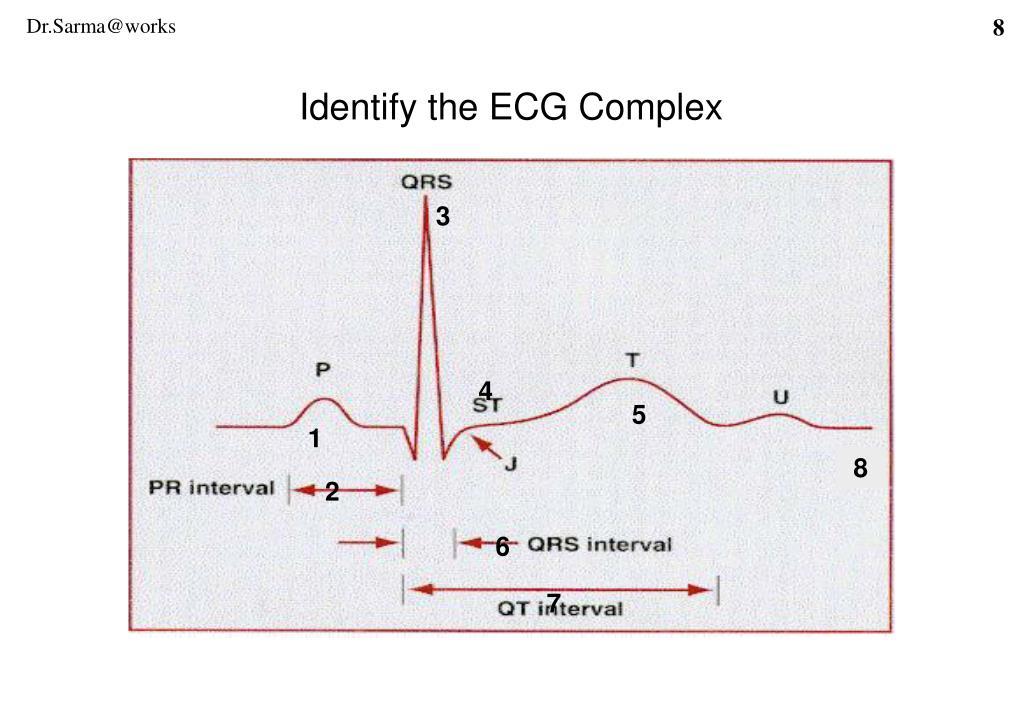 Identify the ECG Complex