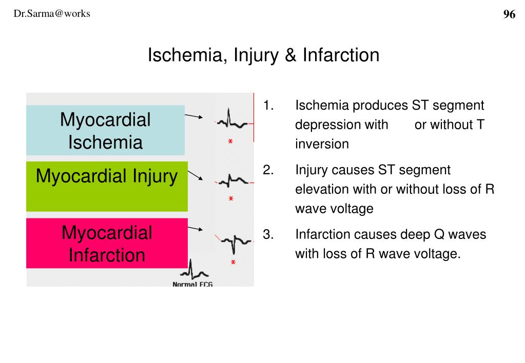 Ischemia produces ST segment depression with       or without T inversion