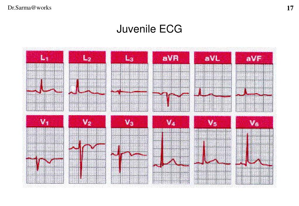 Juvenile ECG