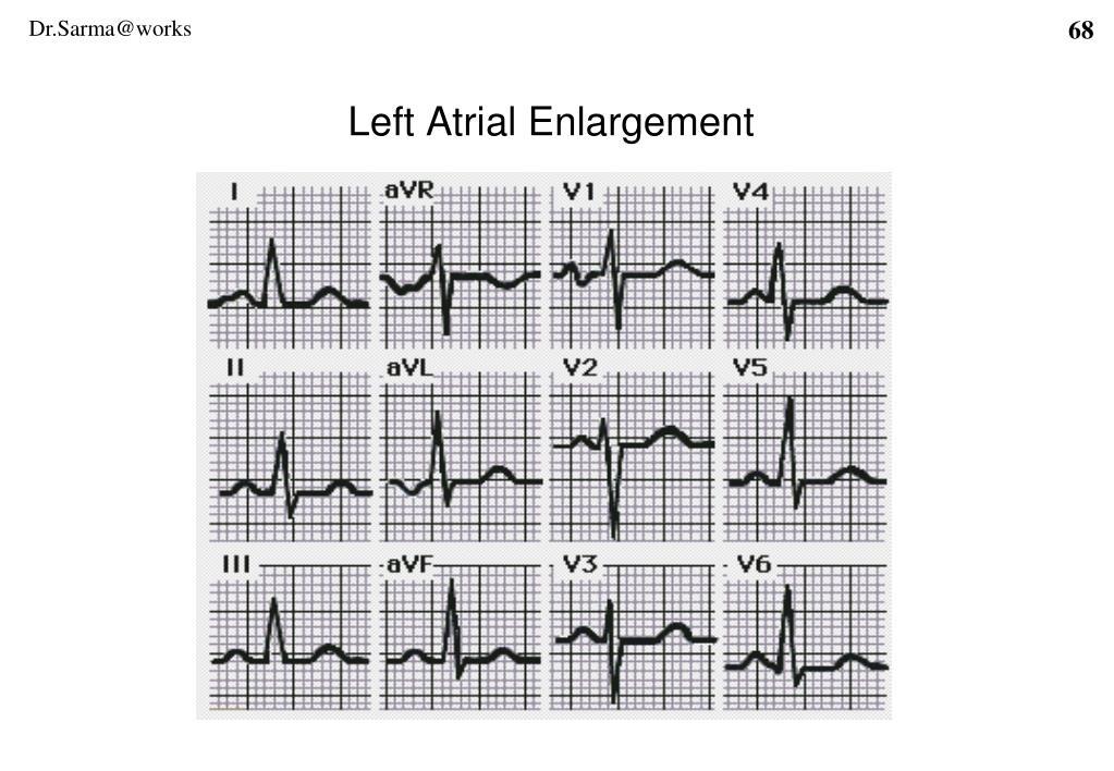 Left Atrial Enlargement