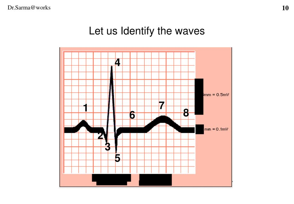 Let us Identify the waves