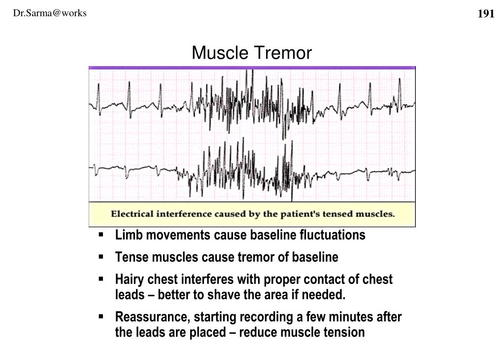 Limb movements cause baseline fluctuations