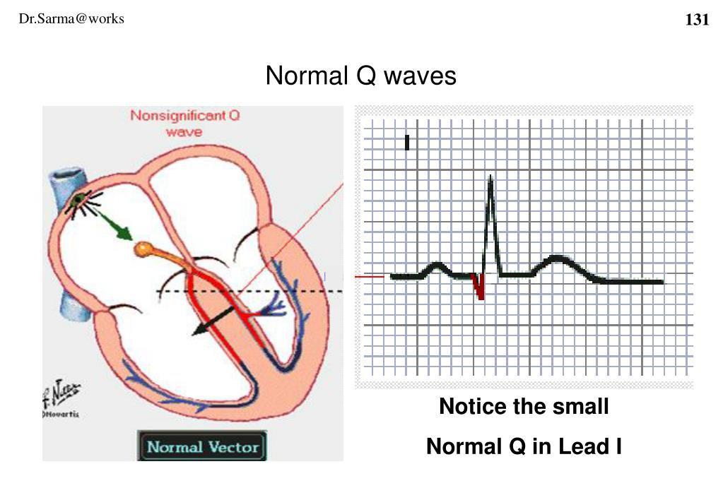 Normal Q waves