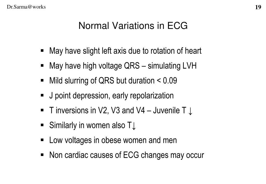 Normal Variations in ECG