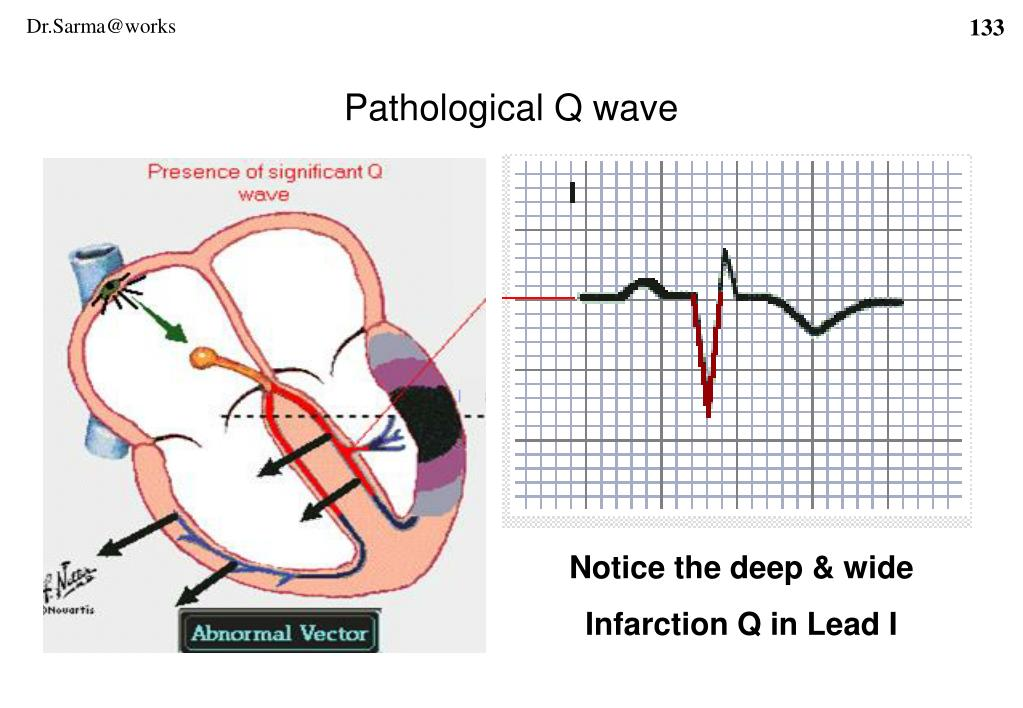 Pathological Q wave