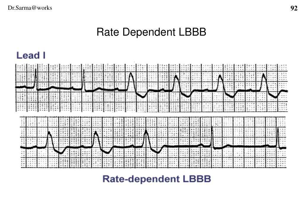 Rate Dependent LBBB