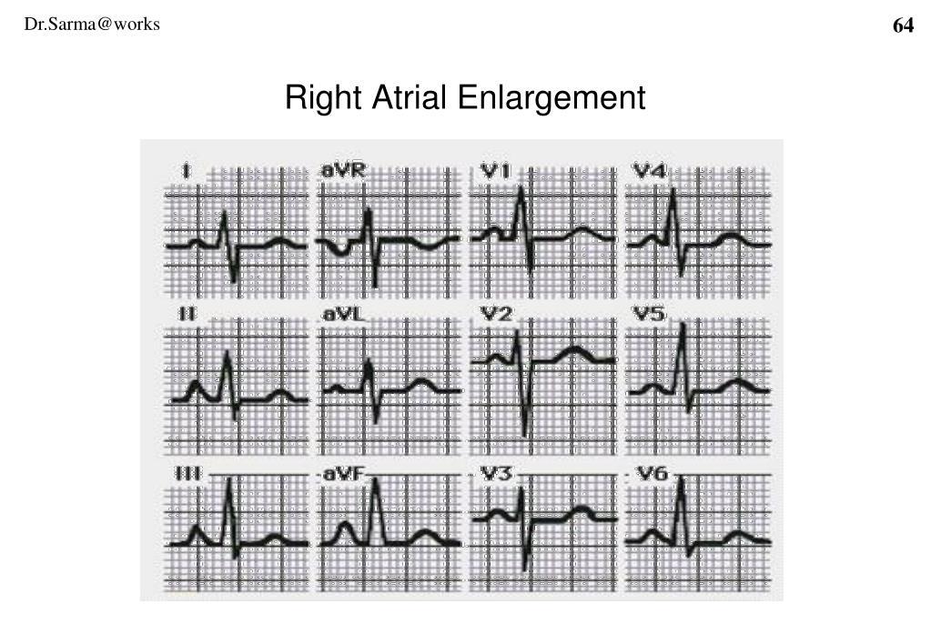 Right Atrial Enlargement