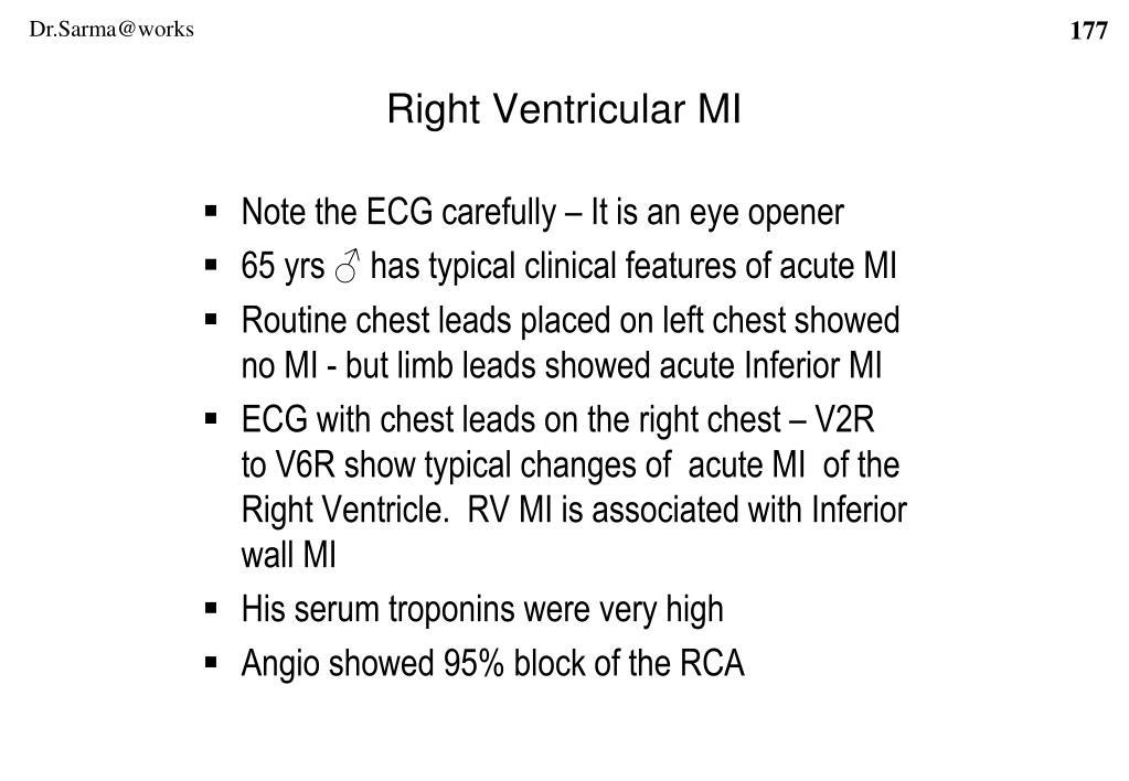 Right Ventricular MI