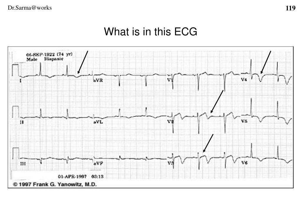 What is in this ECG