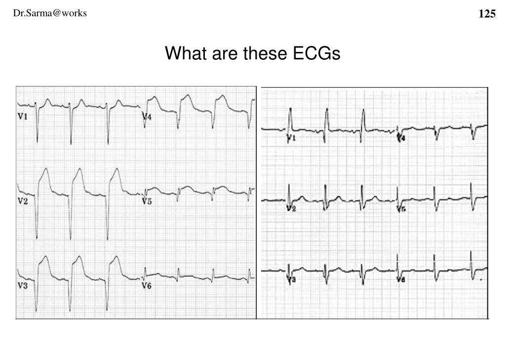 What are these ECGs