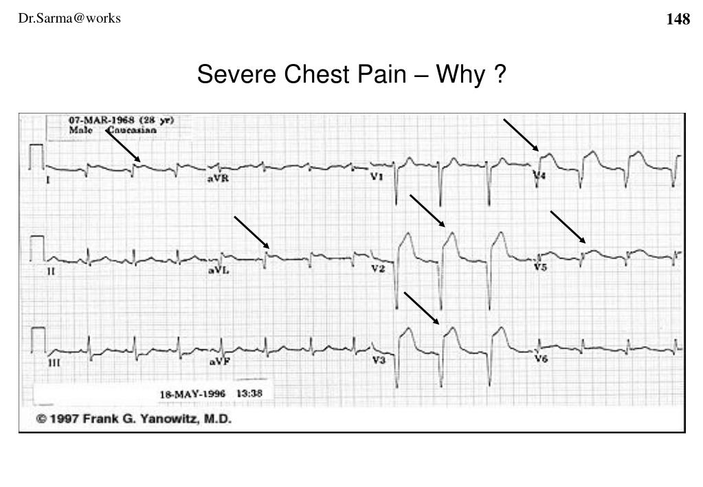 Severe Chest Pain – Why ?