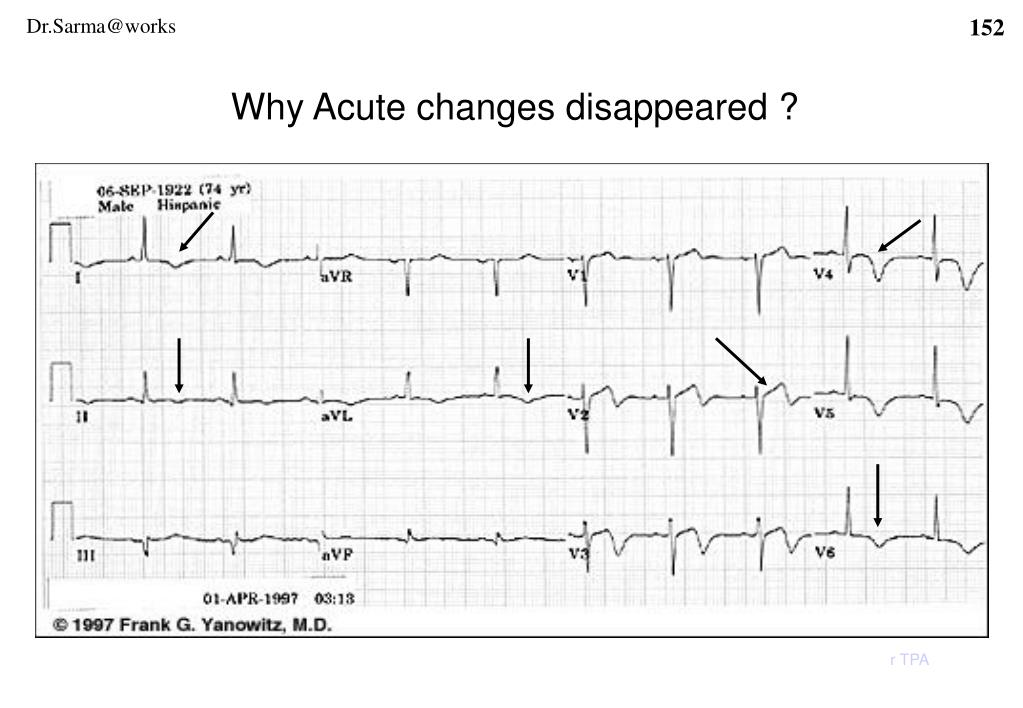 Why Acute changes disappeared ?