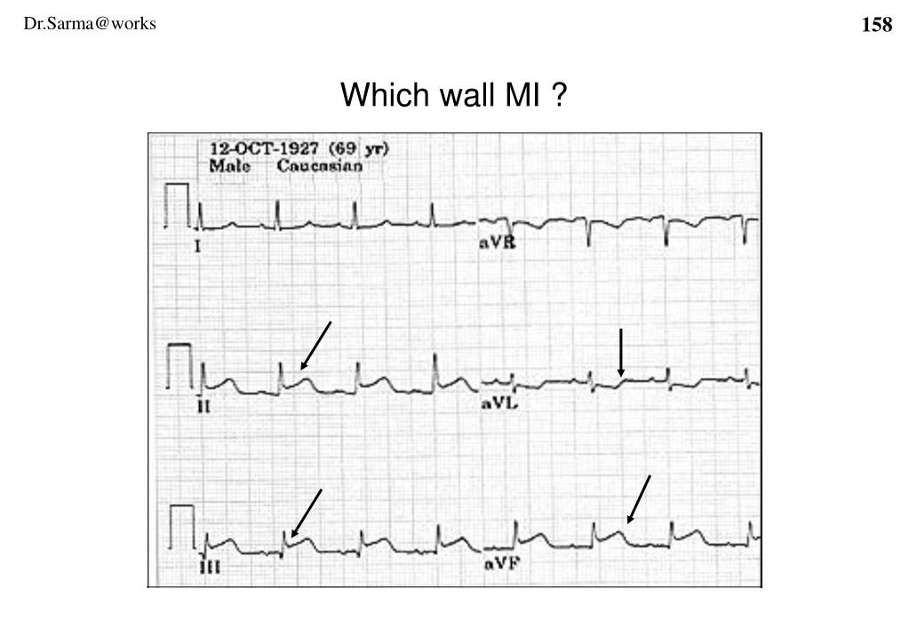 Which wall MI ?