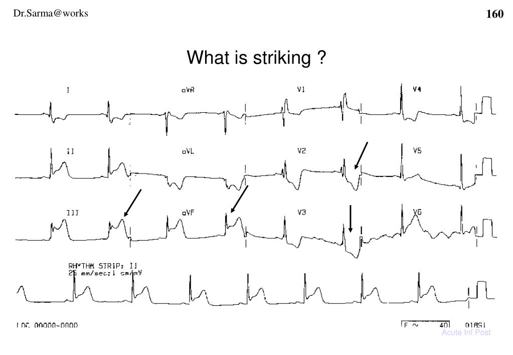 What is striking ?