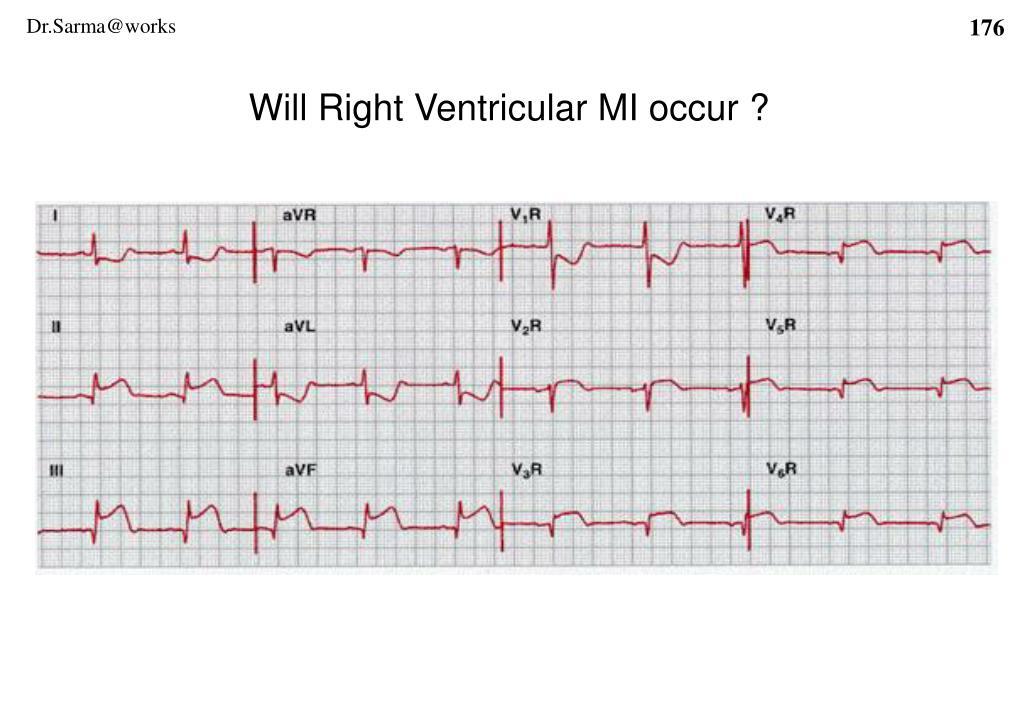 Will Right Ventricular MI occur ?