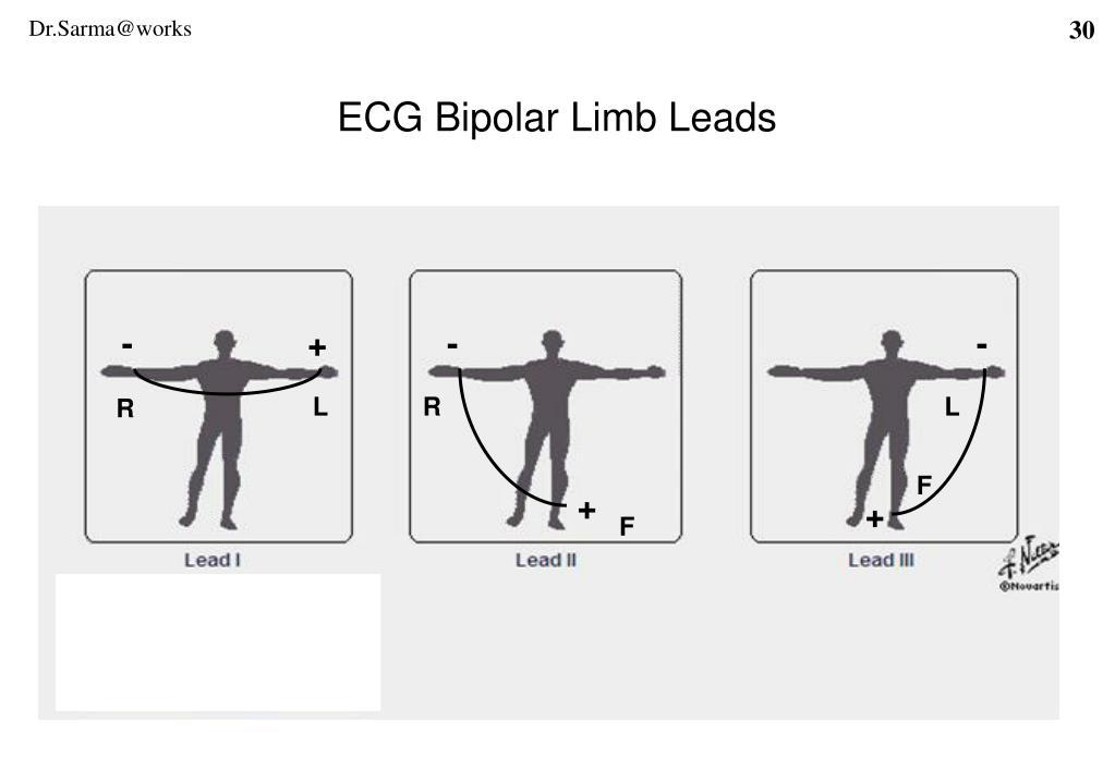 ECG Bipolar Limb Leads