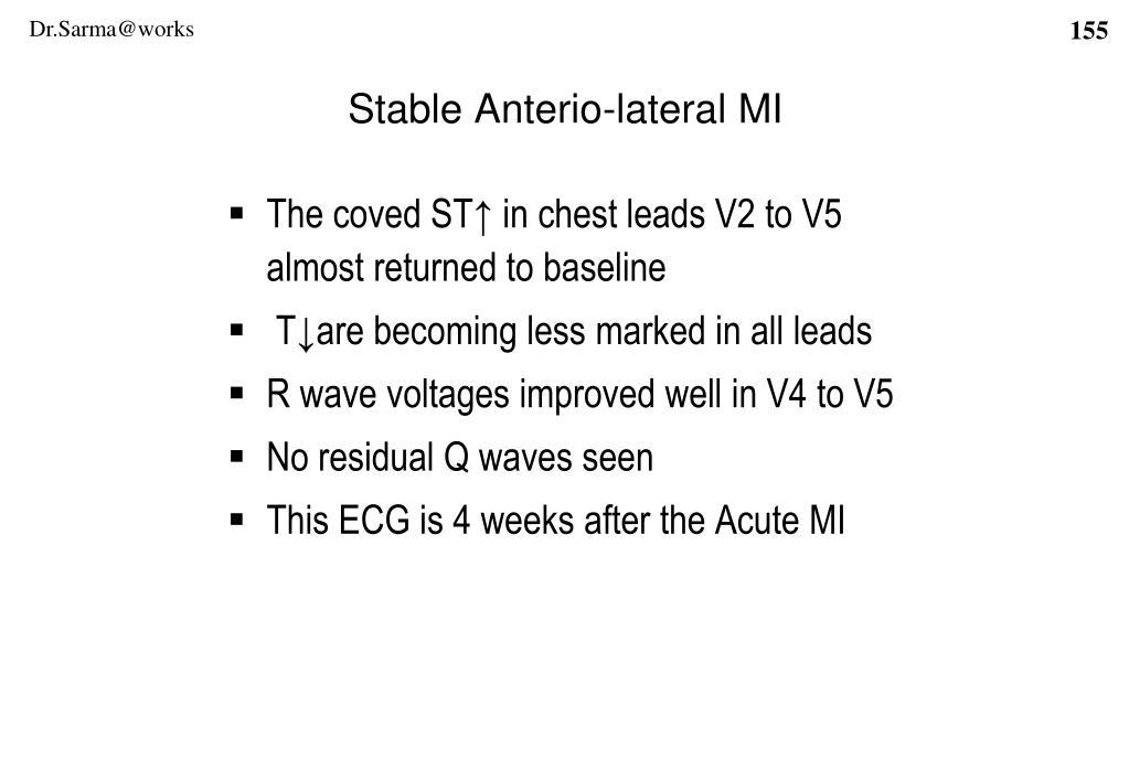 Stable Anterio-lateral MI