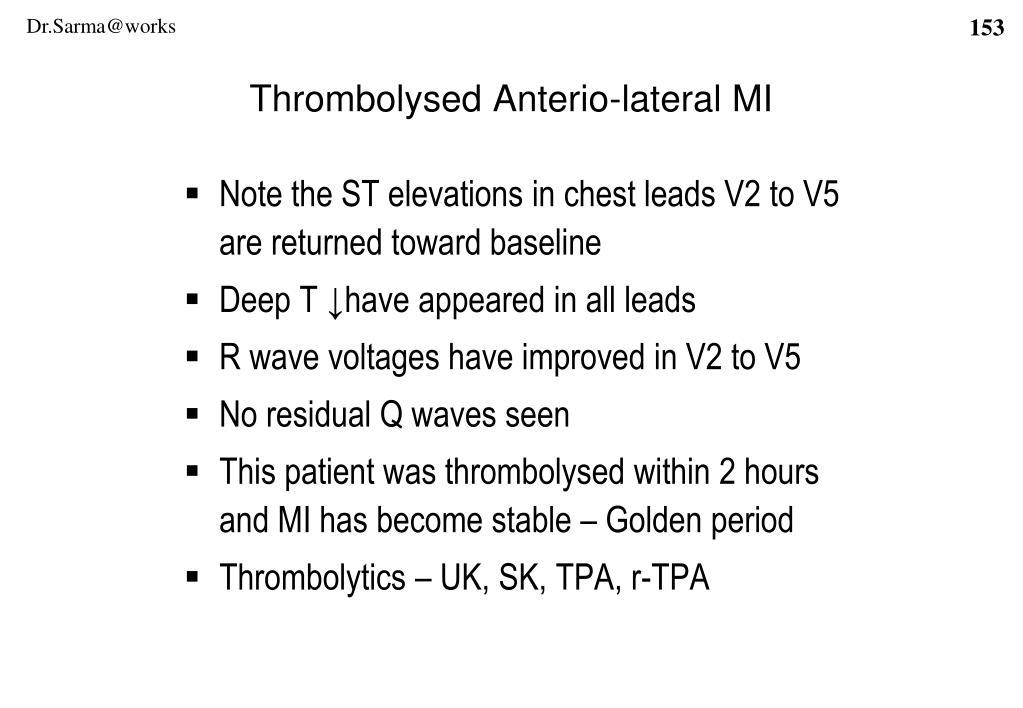 Thrombolysed Anterio-lateral MI
