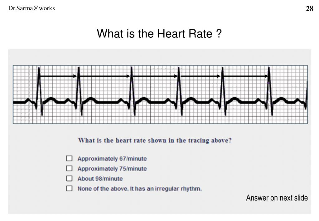 What is the Heart Rate ?