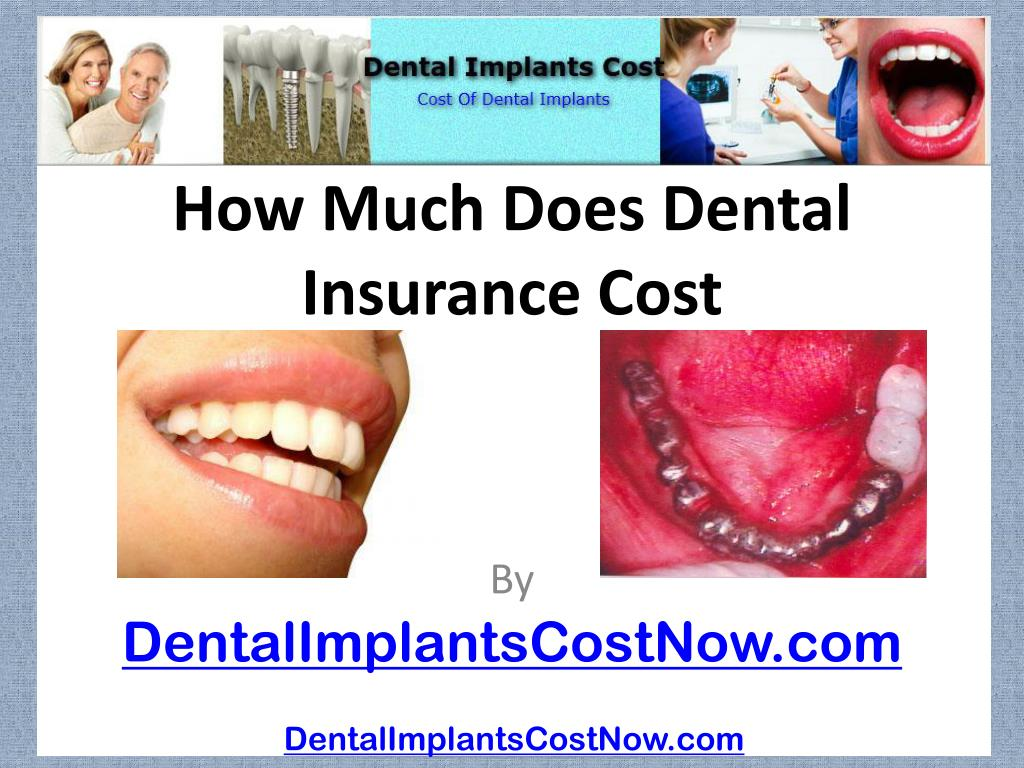 how much does dental insurance cost l.
