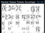 normal human female karyotype 46 xx