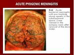 acute pyogenic meningitis17