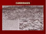 candidiasis74