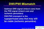 dwi pwi mismatch