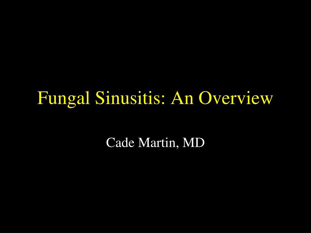 fungal sinusitis an overview l.