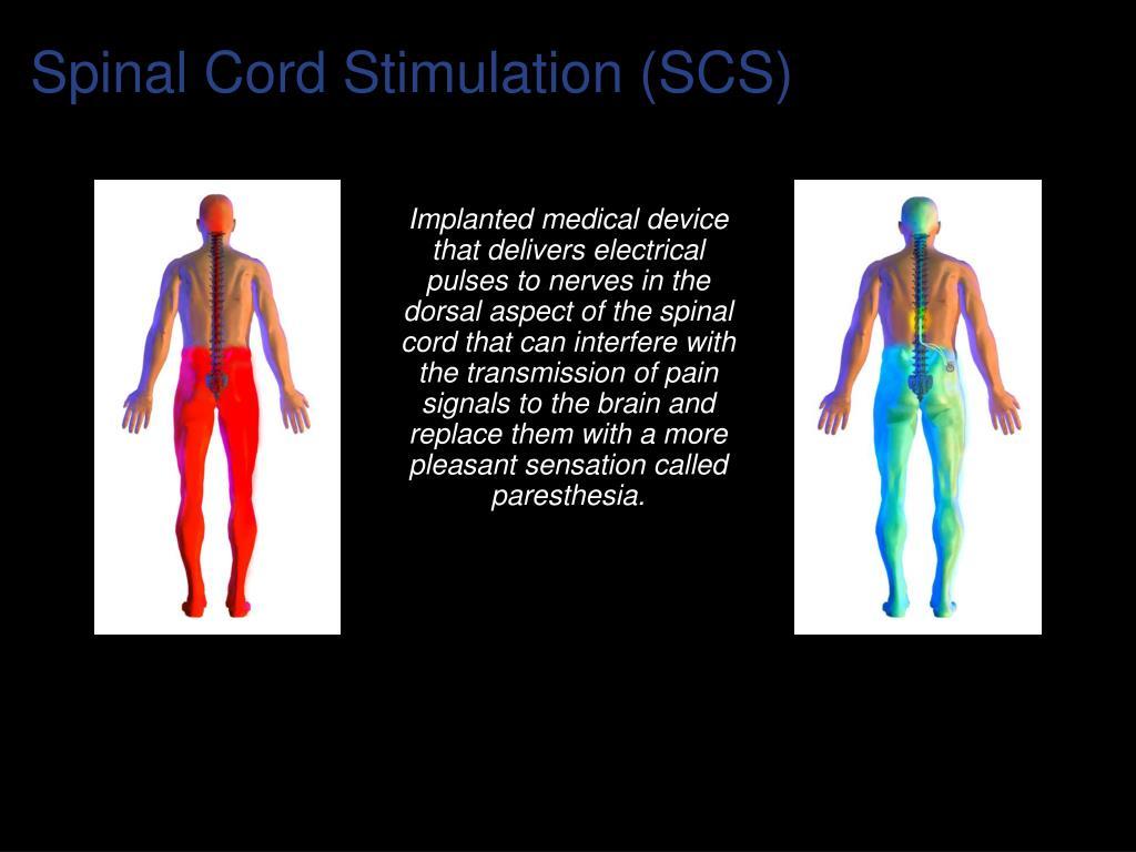 Spinal Cord Stimulation (SCS)