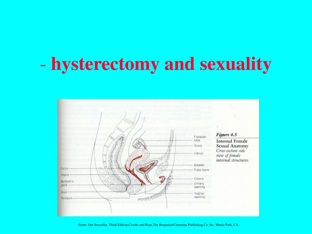 hysterectomy and sexuality