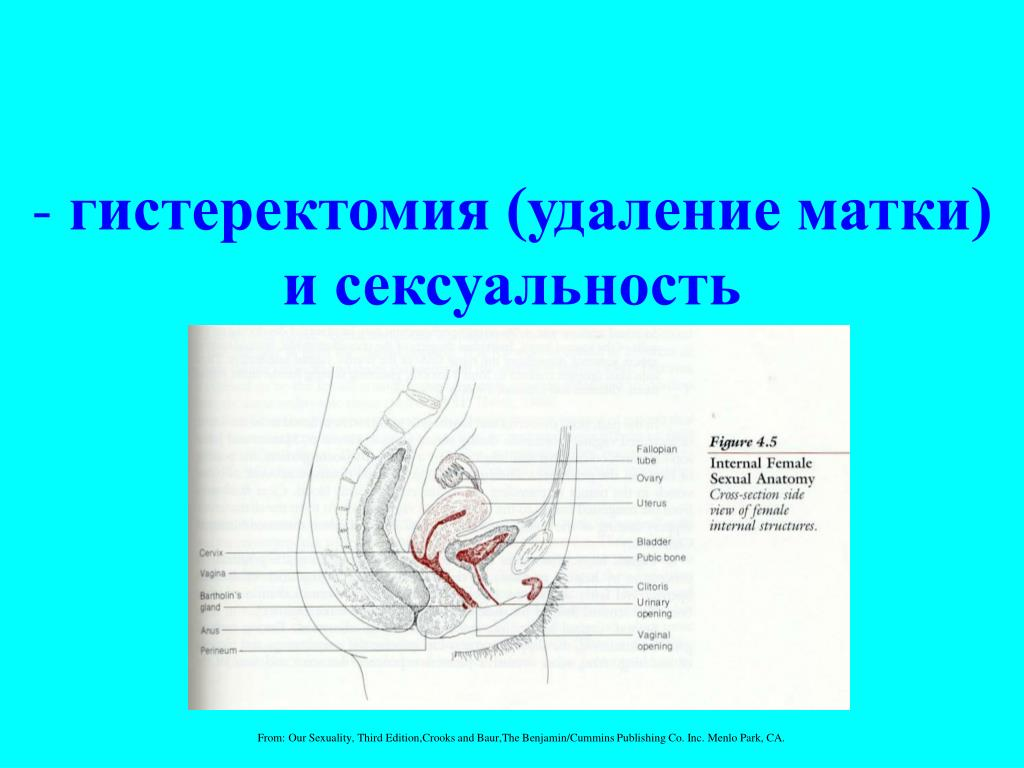 гистеректомия (удаление матки)