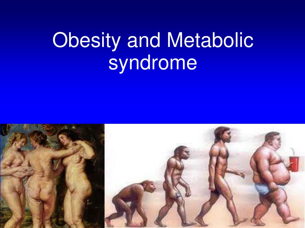 obesity and metabolic syndrome l.
