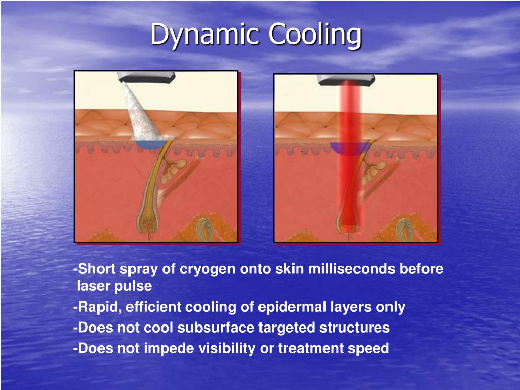 Dynamic Cooling