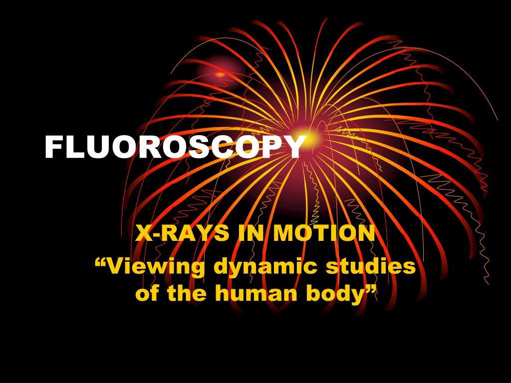 fluoroscopy l.