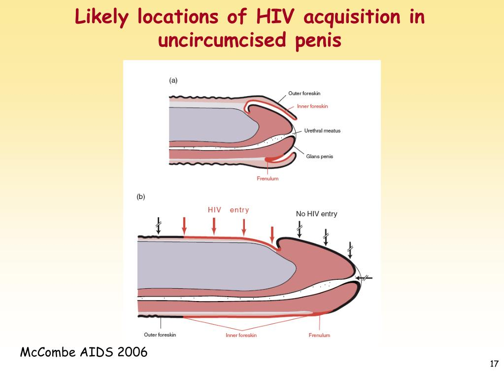 Likely locations of HIV acquisition in uncircumcised penis