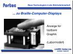 zu braille computer displays