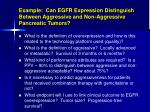 example can egfr expression distinguish between aggressive and non aggressive pancreatic tumors