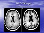 mri findings axial t1 wi c gad enhace