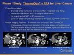 phase i study thermodox rfa for liver cancer