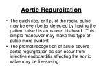 aortic regurgitation45