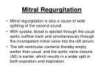mitral regurgitation166